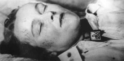 Autopsy photo of Joan Vollmer